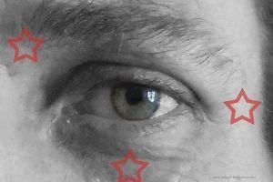 Klopfpunkte Auge